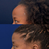 Hairline lowering surgery. This was a one stage technique to reduce the size of the forehead.