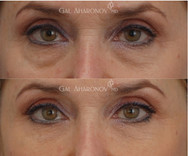 Under eye filler to reduce the appearance of under eye bags and dark circles.