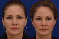 This patient's main concern was that she felt she was developing jowls. Volume loss on the sides of the face can lead to loss of definition in the jawline and increased jowling. She also had some volume loss in her upper eyelids, brows, and temples. Facial filler was used around her eyes, jawline, and temples to rebalance her face making her have a stronger jawline and less of a jowl. Her eyes look more symmetrical and fresh. She also had a bit of filler placed in her nostrils reducing the amount of nostril that can be seen from the frontal view.