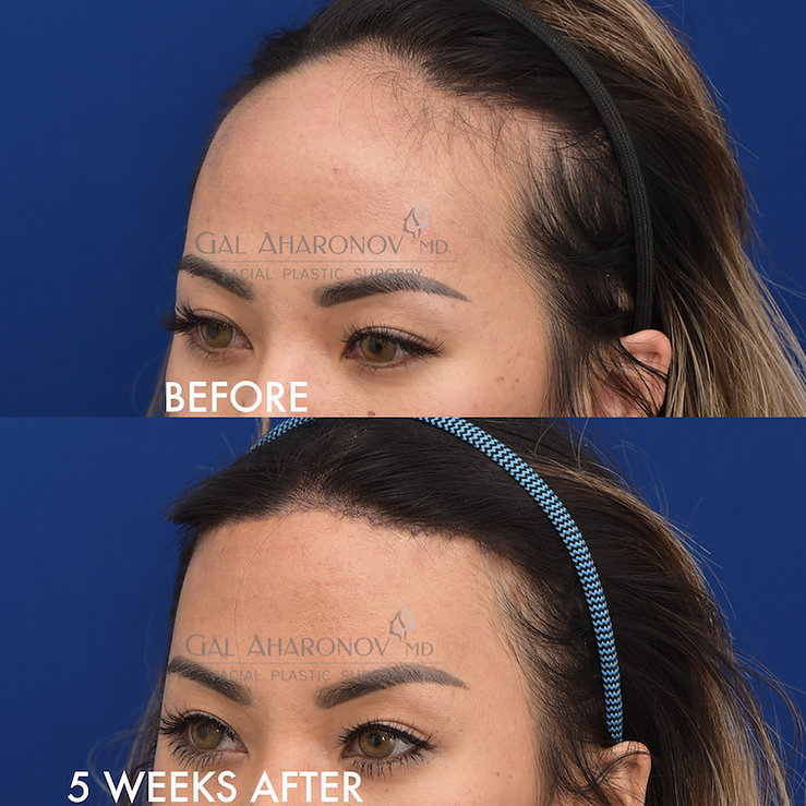 asian-forehead-reduction-surgery-hairlin