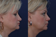 "Rhinoplasty for droopy tip 2 MONTHS AFTER SURGERY. This patient had a droopy tip and did not want to make the rest of her nose any smaller. Her tip was raised and supported without making her look ""piggy""."