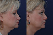 """Rhinoplasty for droopy tip 2 MONTHS AFTER SURGERY. This patient had a droopy tip and did not want to make the rest of her nose any smaller. Her tip was raised and supported without making her look """"piggy""""."""