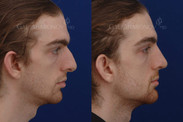 Jaw implants otherwise known as angle of the mandible implants combined with a revision rhinoplasty. A small amount of filler was also placed by the chin and between the eyebrows. The extra width in his jaw helps balance out his face.