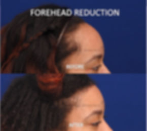 scalp_advancement_surgery_large_forehead