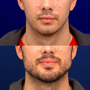 Improvement in the neck by adding a chin and angle of the mandible implants. This is about 10 days after surgery.