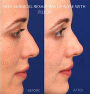 Non Surgical Rhinoplasty. The tip was projected slightly as well as the root of the bridge of the nose to create a more feminine shape to her nose.