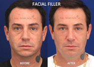 This gentleman complained about his under eye dark circles and the loss of support around his mouth. Filler was used to improve his under eyes and improve his facial support.