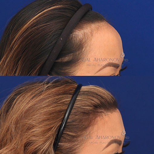 forehead reduction surgery to lower the hairline in one stage