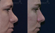 Non surgical rhinoplasty. Filler was used to raise the dorsum to balance the nose. The patient has a history of a previous nose job performed by another surgeon. When the bridge of the nose is too low, it makes the nasal tip seem larger and more prominent. Raising the bridge of the nose with fillers can balance the nose and make the tip seem smaller. This is an immediate result, as seen in this picture which was taken right after the treatment.