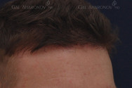 Close up of the patient's hairline at only 4 months after surgery. Results vary and healing times differ patient to patient. Most patients are extremely satisfied with the outcome of their surgery in under 6 months.