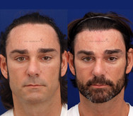 One stage forehead reduction (FROST) with no additional treatments. Lowering the hairline and retaining hair density at the hair line is nearly imposible with any other treatment.