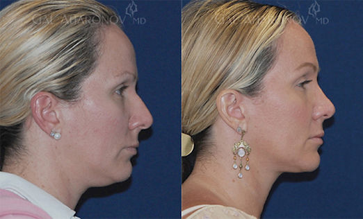 closed_rhinoplasty_surgeon_los_angeles_0