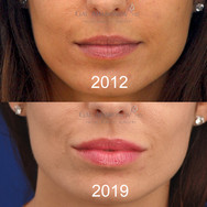 Lip Augmentation with filler. This patient has been recieving periodic top offs over the years. Here she is 7 YEARS after her first injection.