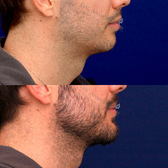 Only 10 DAYS after placement of angle of the mandible implants and chin implant.