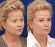 Using facial filler to create more structure to a face.
