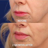 This patient had a surgical lip lift. Here she is 2 months after surgery. A lip lift surgery shortens the distance between the nose and upper lip.
