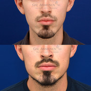 Using filler for a non surgical jaw augmentation. This patient did not have surgery. He had filler injected to widen his jaw.