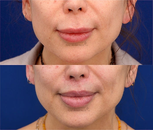 liplift_modified_upper_lip_lift_surgical