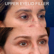 Restoration of deflated eyelid skin using filler. Over time, the deflationary process can cause the appearance of extra skin. Filler was injected into this space to restore her youthful volume.