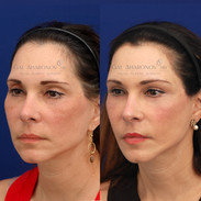 Filler around eyes, temples, lips, and jawline. This result is about 1 year after with no additional treatments.