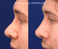 Non surgical rhinoplasty. The patient has a history of a previous nose job performed by another surgeon. There was an imbalance in his nose leading to his tip looking more bolbous and prominent. Filler was used to reshape his nose. Raising the bridge of the nose with fillers can balance the nose and make the tip seem smaller. This should last a couple of years.