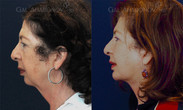 Chin implant combined with a necklift.