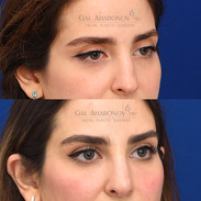 Filler to upper eyelids and brows to create a brow lift for deflated brows.