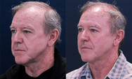 Fillers to cheek and lower eyelids. This patient wanted to be conservative. He looks more youthful but could have used more. Notice how he looks less jowly.