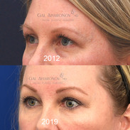 Her initial photo from before eyelid filler compared to after filler and brow lift.