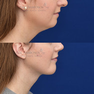 Using a vertical lengthening chin implant combined with neck liposuction and rhinoplasty to balance the lateral profile of the face. The goal was to sharpen and define the lower third of the face, and give the chin a more dominant role.