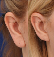 Earlobe reduction to reduce the  overall size of the earlobe and length of the ear.
