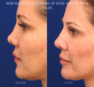 Non surgical rhinoplasty on a patient who had a previous surgical rhinoplasty years ago by another surgeon. She complained of severe collapse of her nose without issues breathing. Filler was used to build the tip of her nose as well as the bridge to create a more natural and less collapsed nose. Filler was also injected into her lips to create better balance between her upper and lower lips.