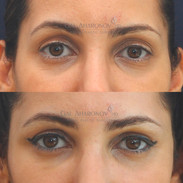 Treatment of upper eyelids, under eyes, and temples with filler.