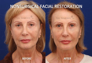 This patient was sent in by her son who is a prominent Plastic Surgeon in the area. Filler was used to restore her face. She has a history of a previous blepharoplasty.