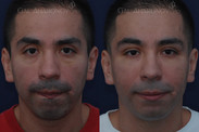 This relatively young man felt that he was starting to look tired and angry. Facial filler was used around his eyes and in his cheek area to give him back his youthfulness. Notice the fullness of his brow which he had when he was younger. He looks like a younger version of himself, not an obviously fake and plastic version.