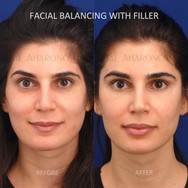 Facial filler was used around her eyes, cheeks, jawline, lips, nose, and temples.
