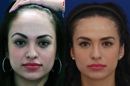 One Stage Forehead Reduction Surgery: About 6 YEARS after surgery. The patient's hairline was lowered by over 2 inches in one stage WITHOUT a tissue expander.