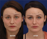 This young lady wanted to restore her face to what it was a few years earlier. Filler was used in several areas to restore balance and freshness.