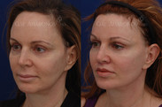 This patient had a facelift in the past which tightened her skin but did not address her volume loss problem still leaving her with a jowling effect. Volume loss on the sides of the face can lead to loss of definition in the jawline and increased jowling. Some patients with this problem think they need a facelift to fix the jowling. Instead volume was placed to recreate a straight jawline. Filler was placed on her jawline, as well as other parts of her face. Notice the improvement in her jawline. She also had a surgical lip lift to shorten her upper lip.