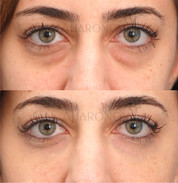 Under eye filler to reduce the appearance of this young lady's undereye bags. The bags are still there, they are just hidden by the filler.