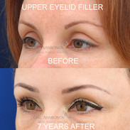 Correction of A-Frame deformity with filler. This particular issue is caused by loss of volume both in the brow compartment and intraorbital fat compartment in the medial side of the eye socket. Filler was used to lower the crease.