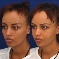 Filler injection to several parts of the face to add generalized volume. She had filler placed in her temples, upper eyelids, under eyes, cheecks, and jawline.