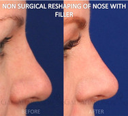 Non Surgical Rhinoplasty for a patient with a previous nosejob that was performed years before. She felt that the tip of her nose looked bolbous. Filler was used to define the tip and build the dip in her bridge to create a more balanced nose.