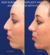 Non surgical rhinoplasty and non surgical chin augmentation. Filler was used to balance the nose and to enlarge the chin.