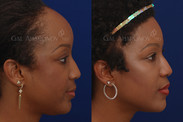 One Stage Forehead Reduction Surgery: About 9 months after surgery. The patient's hairline was lowered by about 1.5 inches in one stage WITHOUT a tissue expander. The patient also had facial fillers to restore a youthful look to her face.