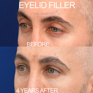 Eyelid and temple filler. This patient did not like how much more of his upper eyelid showed as he was aging. Filler was used to lower the crease and give him back his youthful fullness.