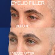 Addressing upper eyelid volume loss with filler.