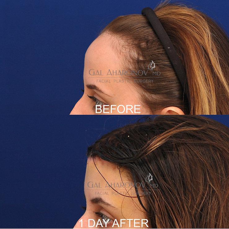 frontal-bone-shaving-forehead-reduction-