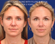 This patient had facial volume loss especially around the eyes and lateral face. Facial filler was used around her eyes, cheeks, jawline, lips, and temples to rebalance her face and widen it. Her eyes look more symmetrical and fresh.