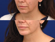 Surgical chin augmentation with a chin implant. The increased projection also helps support the neck. Filler was also placed in the angle of the jaw as well as the lower lip.